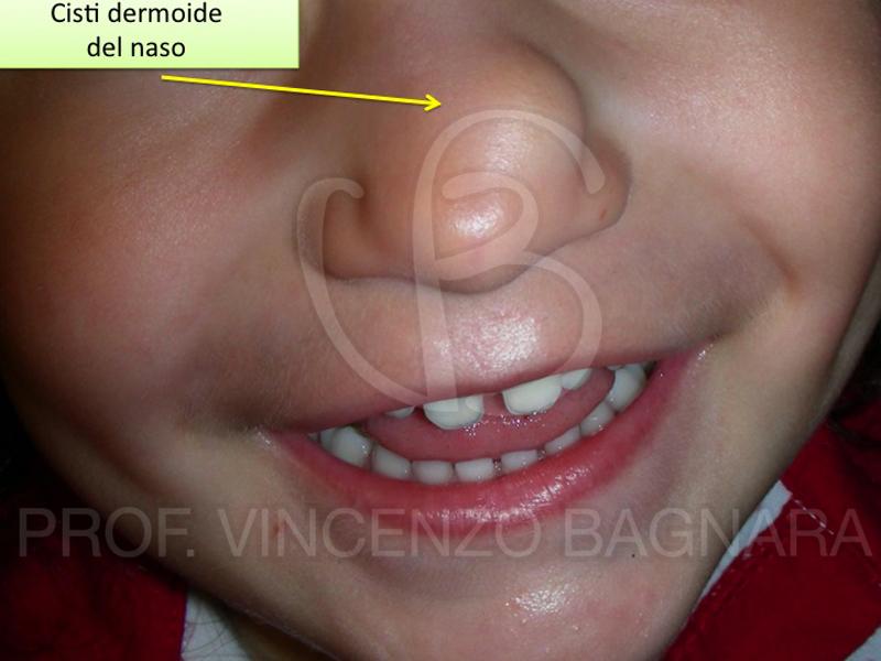 Cisti dermoidi in et pediatrica for Interno del naso