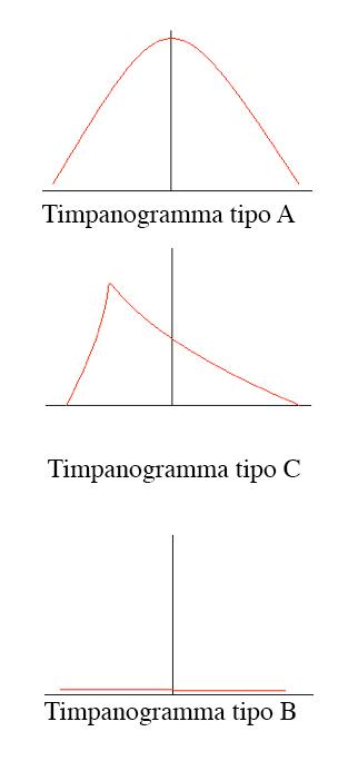 Timpanogramma