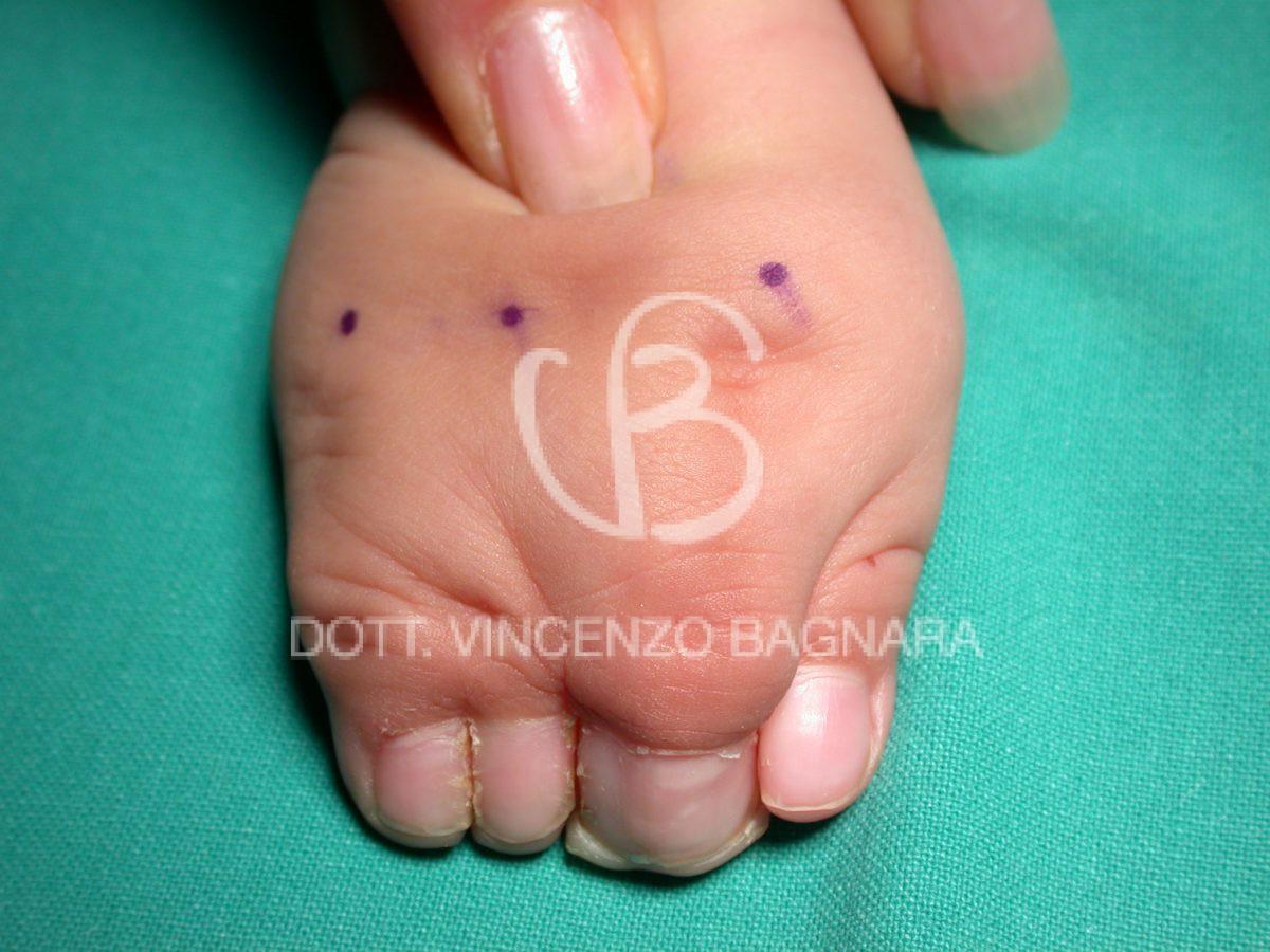 Aspetto a 10 mesi epoca del primo intervento: dorso della mano